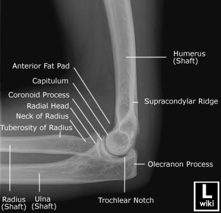 elbow-5